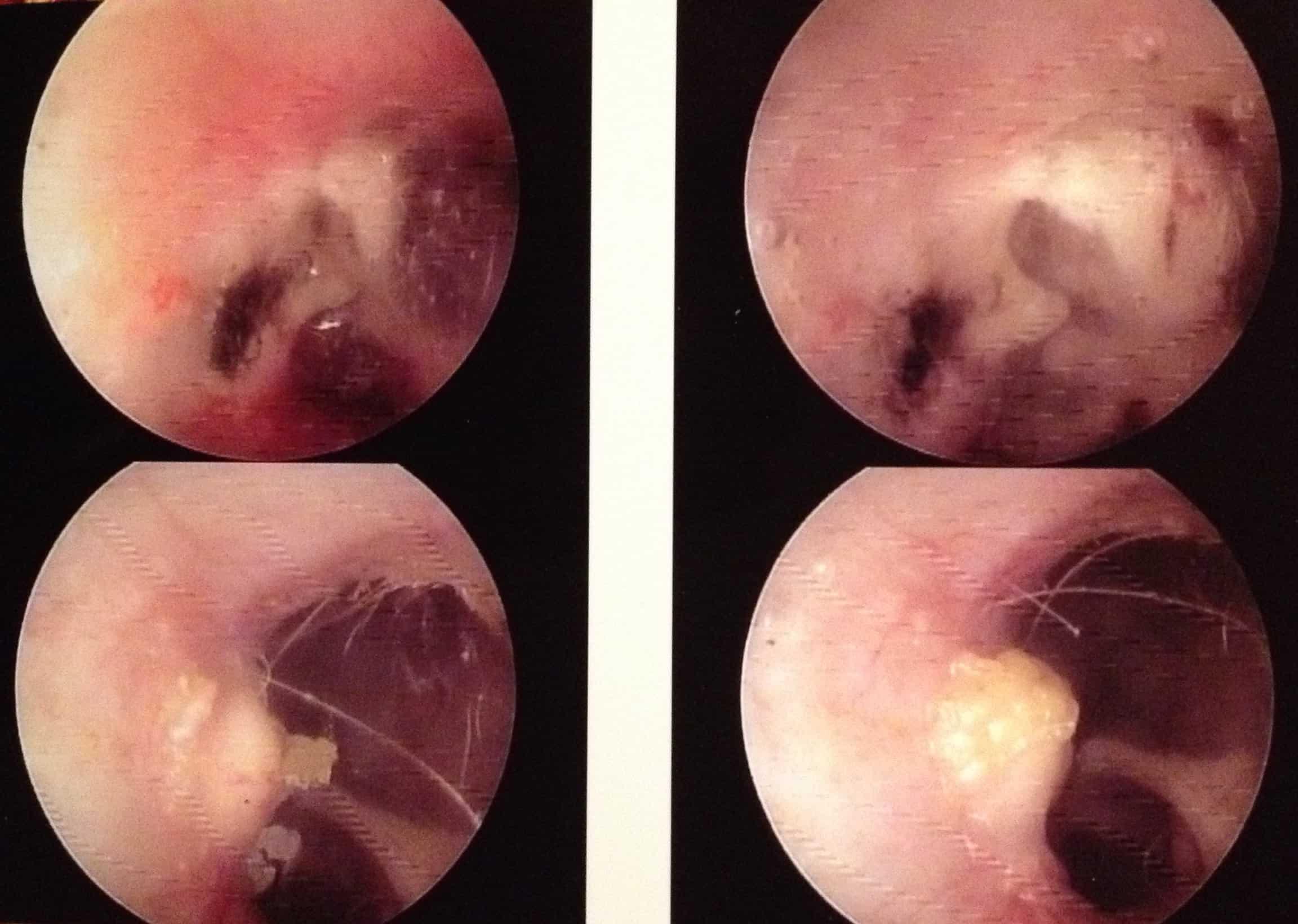Tumor Cat Ear Canal